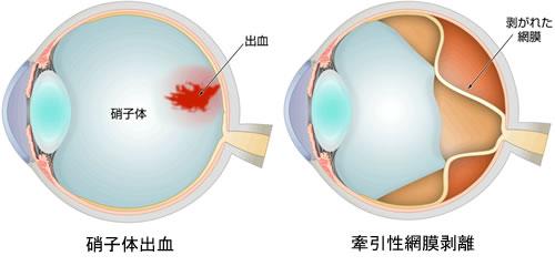 とう にょ う びょう せい 網膜 症